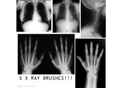 X射线ps笔刷
