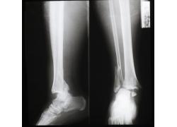 骨折的小腿x光图像